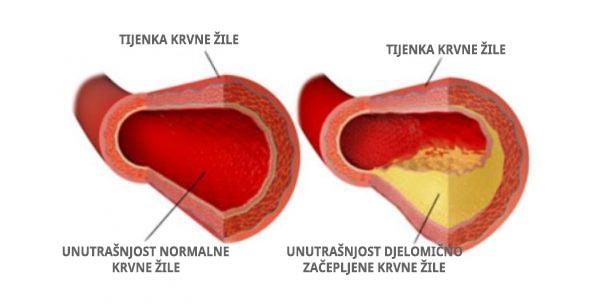 kolesterol in krvne žile