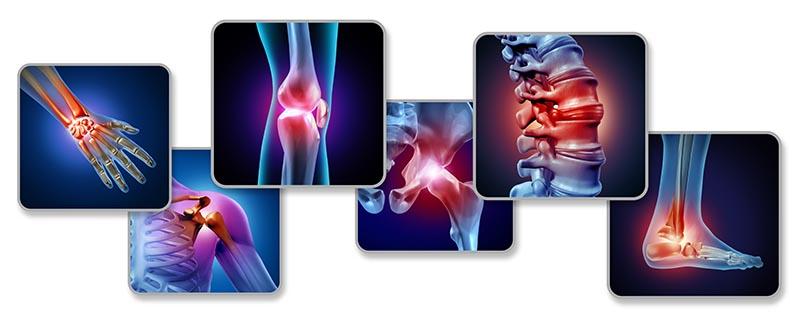 koji zglobovi najčešće bole