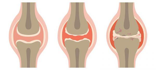 simptomi osteoartritisa