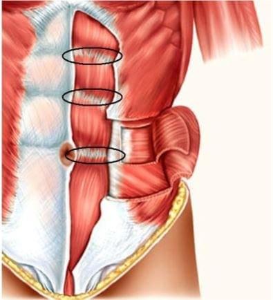 kitaski vložki - trbušni mišić